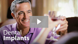 Click here to see Dental implant video